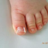 wrastające paznokcie tamponada
