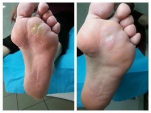 usunięta maceracja i odcisk z modzelem stopa lewa